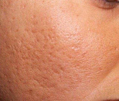Acne-scar-before