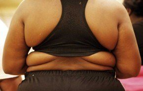 V Congreso Europeo de Cirugía de la Obesidad y Metabólica