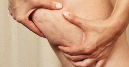 Tratamiento para quitar la celulitis ¿es posible quitarlas con remedios caseros?