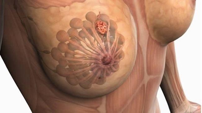 autoexamen-de-mama-importancia-de-controles-de-mama-para-prevenir-el-cancer-cancer-de-mama