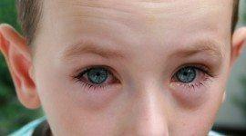 ¿Qué es la alergia? Remedios para minimizar síntomas