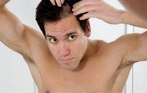 Opciones para prevenir la alopecia