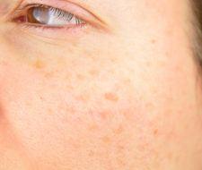 Manchas en la piel: Cómo quitar las manchas blancas, rojas, marrones, negras y amarillas