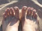 ¿Por qué me duele un dedo del pie?