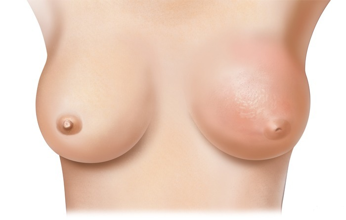 como-prevenir-el-cancer-de-mama-auto-exploracion
