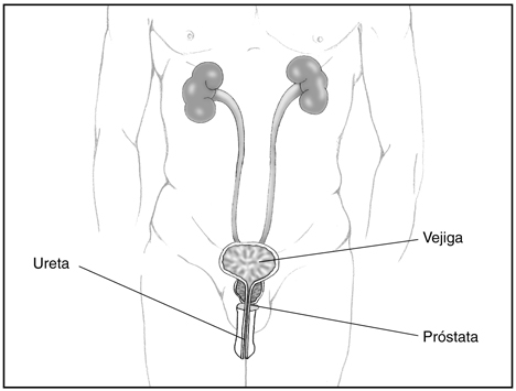 prostata-inflamada-tracto-urinario
