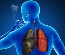 Cáncer de pulmón – Síntomas, tipos, tratamiento y esperanza de vida
