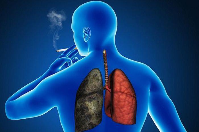 cancer-de-pulmon-sintomas-tipos-tratamiento-esperanza-de-vida-pulmones-afectados-por-el-tabaco