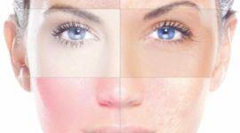 Alergias a los maquillajes – Señales de alergias a los cosméticos