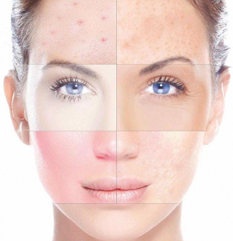 alergias-a-los-maquillajes-señales-de-alergias-a-los-cosmeticos