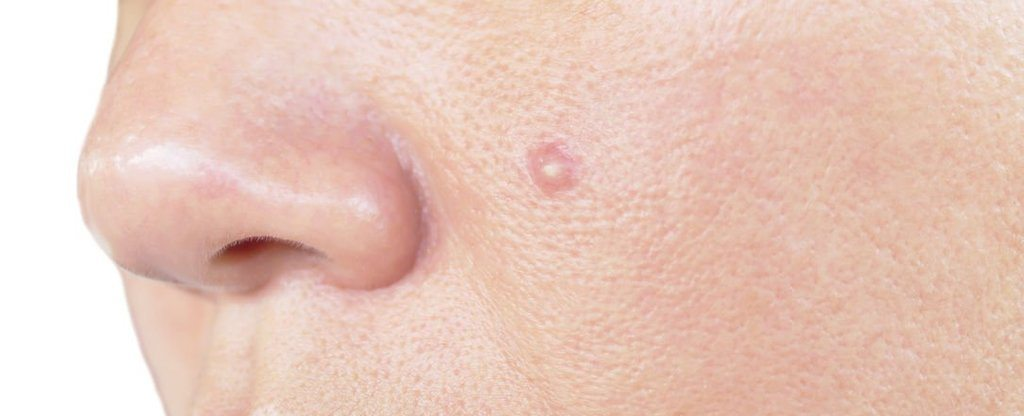 alergias-a-los-maquillajes-señales-de-alergias-a-los-cosmeticos-acne-espinillas