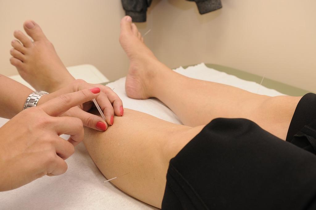verdades-y-metiras-de-la-medicina-alternativa-acupuntura