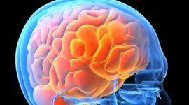 Neurotoxicidad central | Qué es y cómo afecta a la memoria