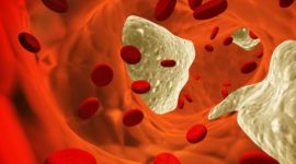 Colesterol alto: un riesgo para nuestra salud