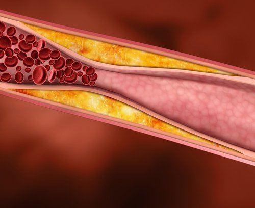 Los higos contienen cantidades importantes de fibras solubles que son fácilmente absorbidas por el cuerpo. La más importante es la pectina, que contribuye a la eliminación del llamado colesterol malo