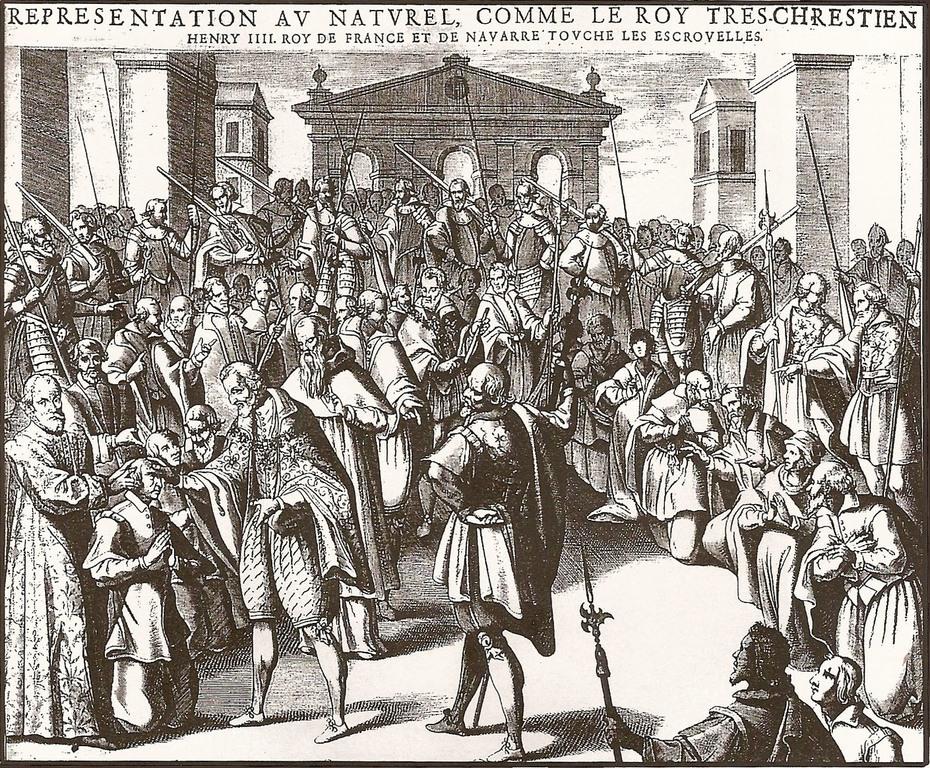 El-toque-del-Rey-Qué-es-su-historia-medicina-actual