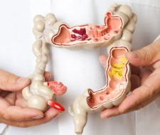 Colon irritable: Síntomas, causas y tratamiento o dieta
