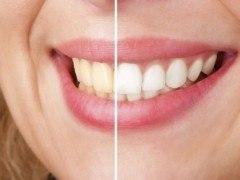 Cómo blanquear los dientes