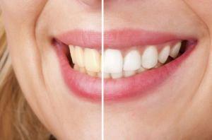 blanquear-los-dientes