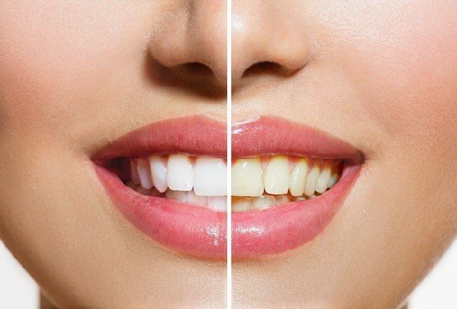 10-remedios-caseros-para-blanquear-los-dientes-remedios-caseros
