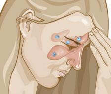 9 remedios naturales para el dolor en los senos nasales