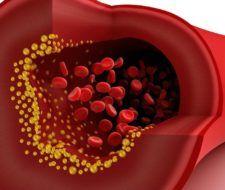 Protegido: Un alimento extra que reduce el colesterol malo
