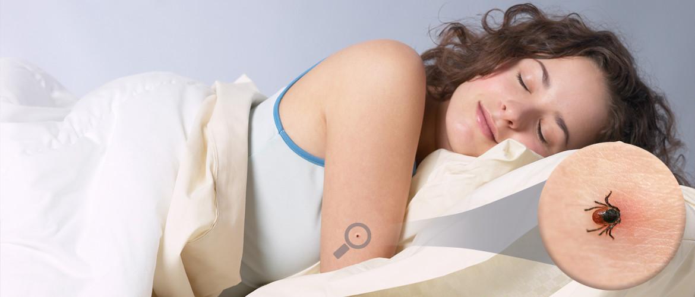 picaduras-de-chinches-remedios-caseros-plaga-cama