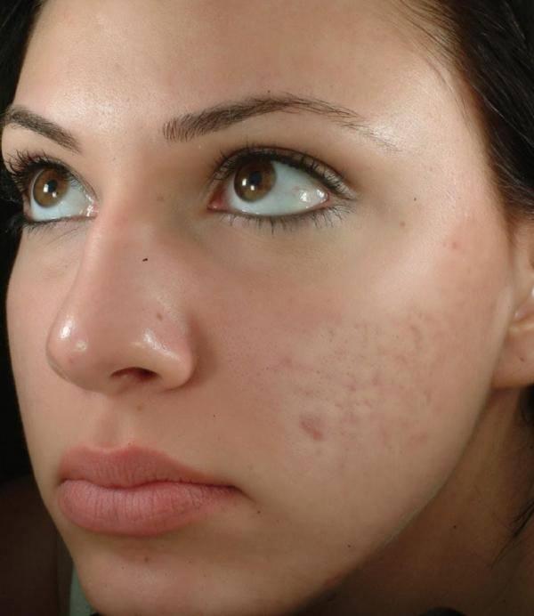 cuales-son-los-beneficios-del-jabon-de-azufre-acne
