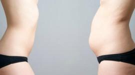 Las causas de la barriga hinchada y las soluciones