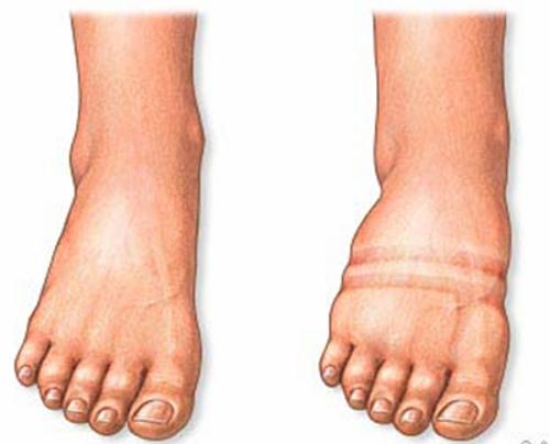 barriga-hinchada-causas-y-tratamiento-retencion-de-liquidos