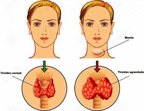berros-efectos-secundarios-hipotiroidismo