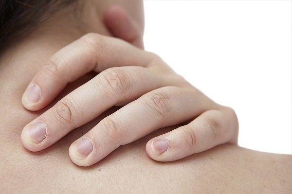 contractura cervical