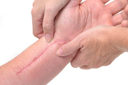 las-mejores-cremas-para-eliminar-cicatrices-marcas
