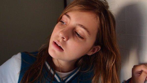 adolescentes-y-adultos-con-dermatitis-seborreica