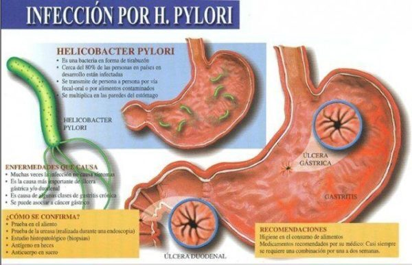 bacteria-helicobacter-pylori-como-se-contrae