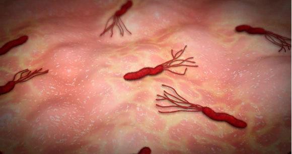 bacteria-helicobacter-pylori-diagnostico