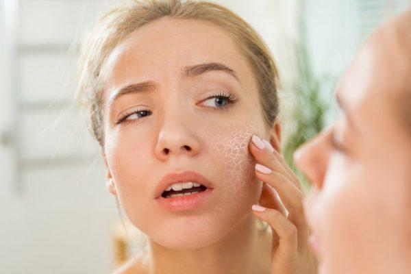 Beneficios malva inflamacion piel