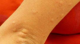 Cuáles son las causas de las manchas rojas en la piel