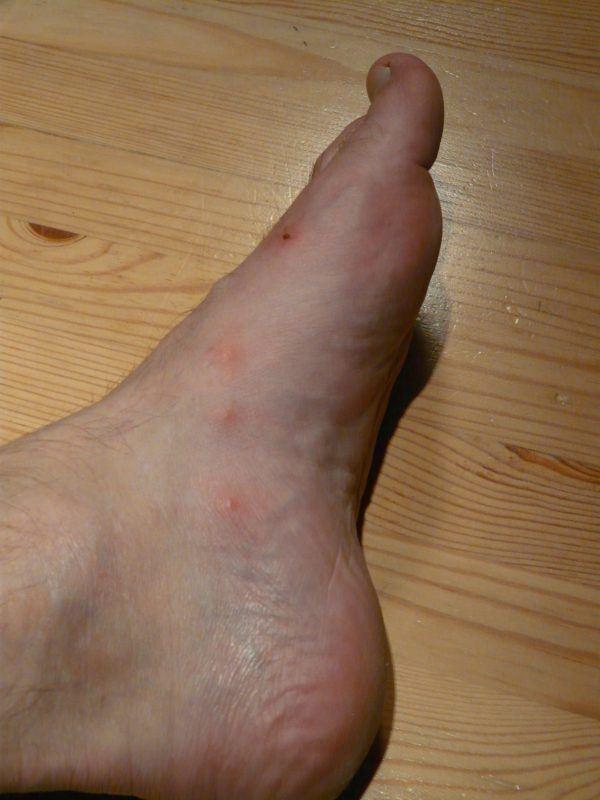 manchas-rojas-en-casos-de-acne