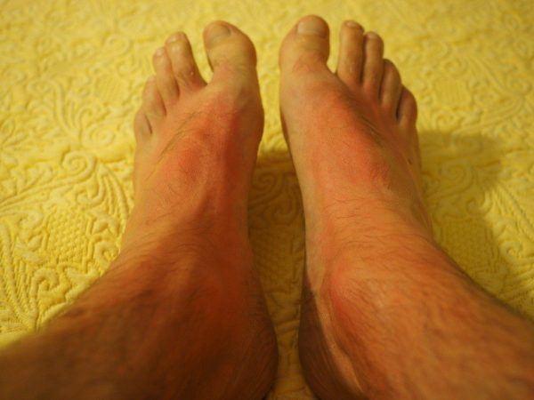 motivos-del-enrojecimiento-de-la-piel