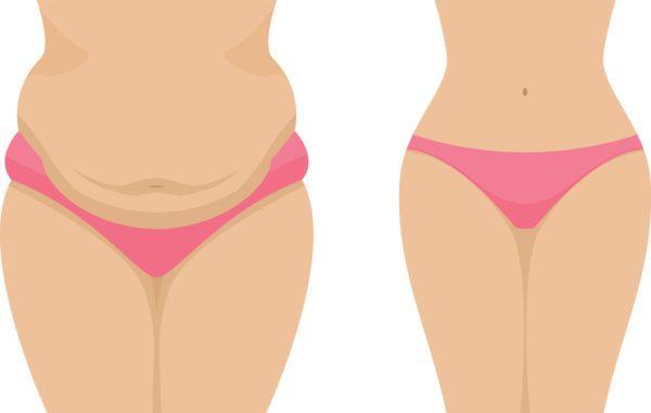 Reduccion cintura