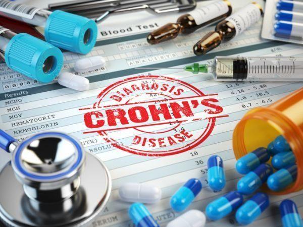 enfermedad-de-crohn-medicina