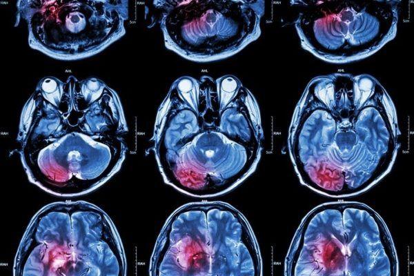 Que es un ictus cerebral enfermedad cerebrovascular