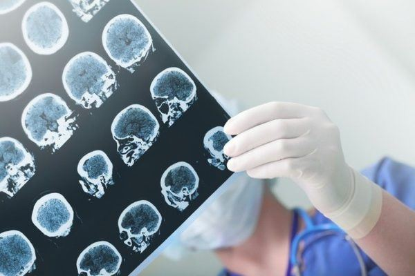 Remedios naturales para el ictus cerebral vida saludable