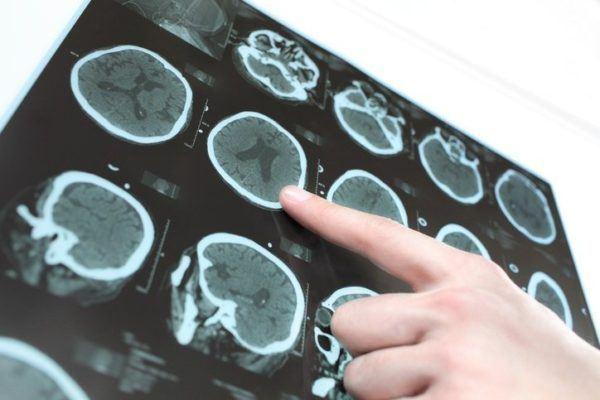 Remedios naturales para ictus cerebral vida saludable