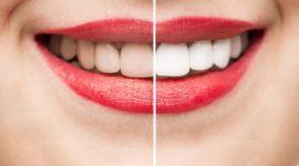 Remedios caseros para curar la gingivitis
