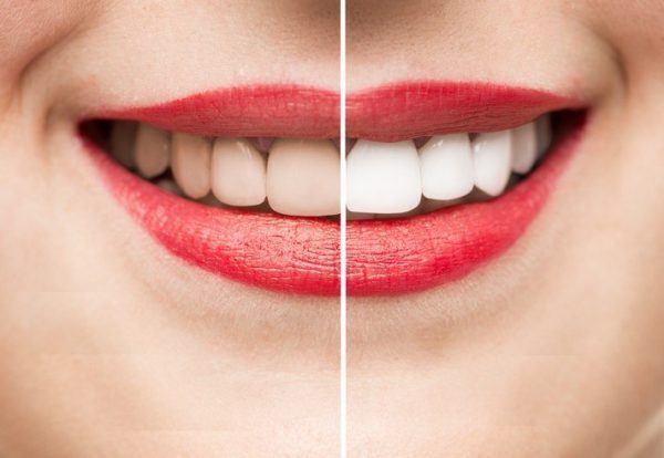 Remedios caseros para curar la gingivitis restos de comidas en los dientes