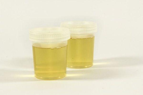 cistitis-remedios-caseros-orina-dos-muestras