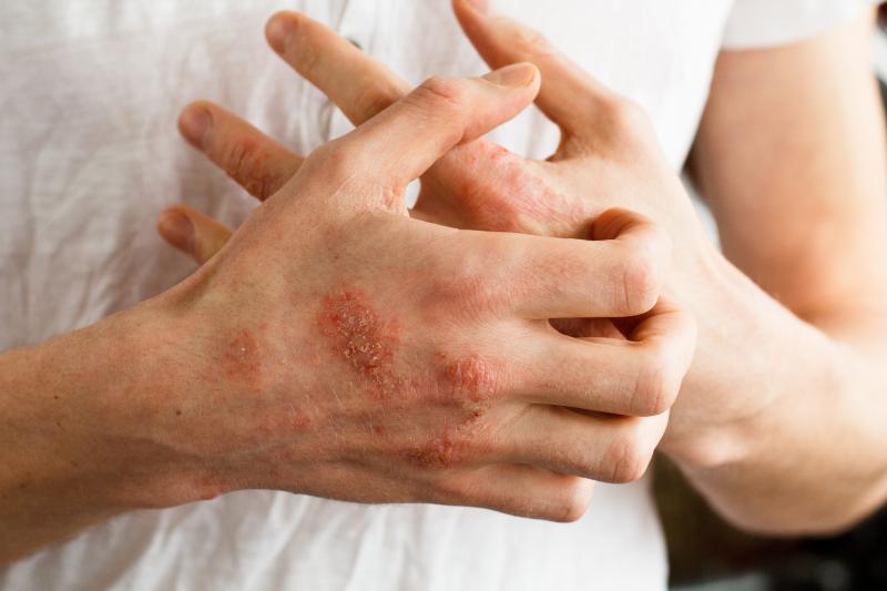 cremas piel atopica