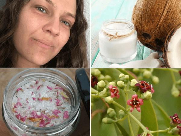 Los Mejores Remedios Caseros Para Combatir Los Eczemas Viviendosanos Com